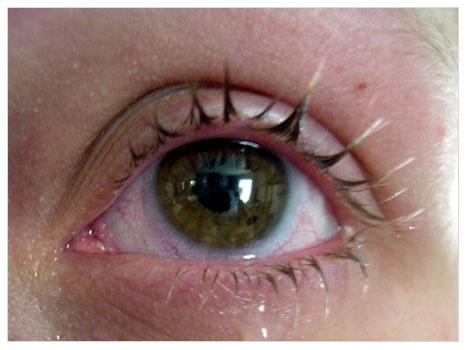 Göz Rahatsızlıkları